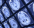 several brain scans illuminated