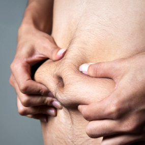 hands clenching abdominal fat