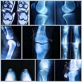 What Type of Arthritis Do You Have?