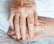 arthritic hands