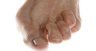 Osteoarthritis of the Big Toe: Symptoms, Causes, and Treatments