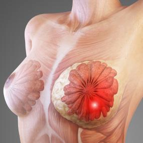breast-lumps