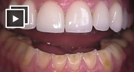 bulimia's effect on teeth