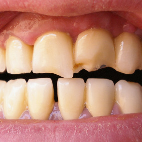 yellow brittle teeth