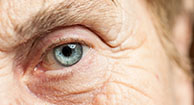 7 Symptoms of Cataracts