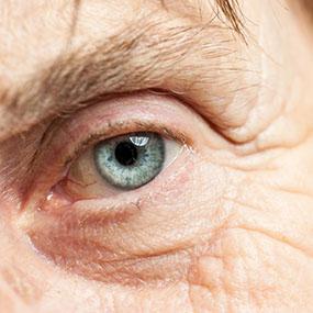 What Do Cataracts Look Like Eye