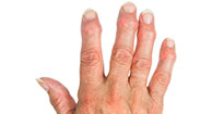 "Dactylitis: ""Sausage Fingers"""
