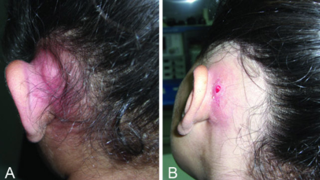 What causes lumps behind the ears 4 ccuart Images