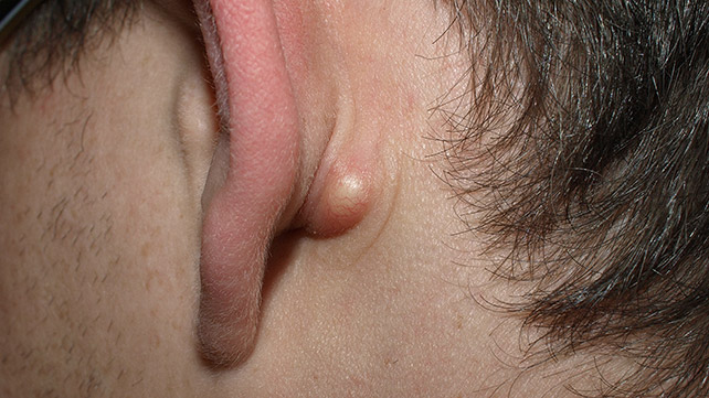 what causes lumps behind the ears?, Human Body