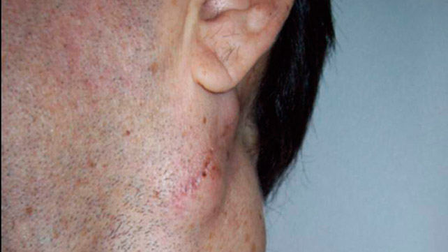 What Causes Lumps Behind the Ears?