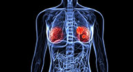 Recurrence Rate for Triple Negative Breast Cancer