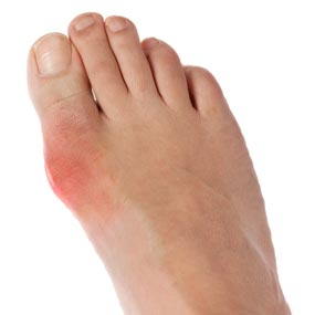 gout disease treatment in pune diet to follow when having gout