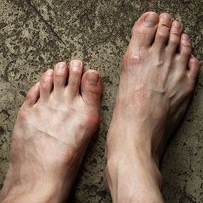 foods lower uric acid colchicine helps relieve an acute gout attack by uric acid level that causes gout