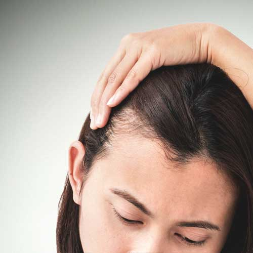How to stop hair from falling out so much