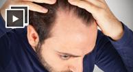 Does HIV Cause Hair Loss?