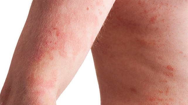inverse psoriasis: pictures, causes, and treatments, Skeleton