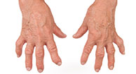 Rheumatoid Arthritis Risk Factors: Is It Hereditary?