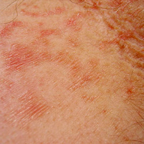 red itchy bumps on legs - WebMD Answers