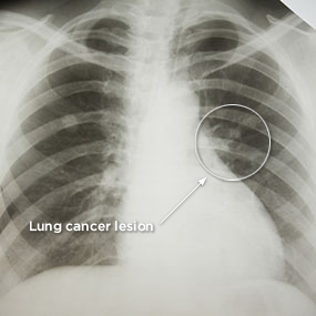 """lung-cancer-lesion"""