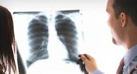 Symptoms & Stages of Lung Cancer