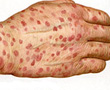 hand covered in rash