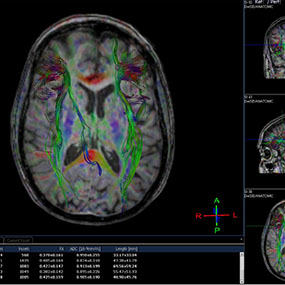 A Closer Look: Multiple Sclerosis MRI Images of the Brain
