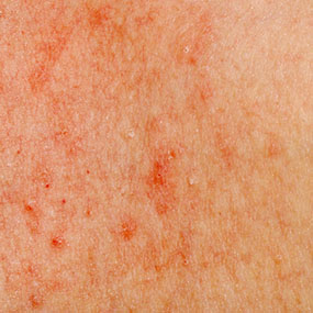 pinprick red dots, itchy skin, wrongly diagnosed - Our Health