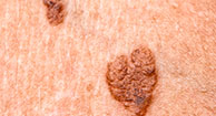 Pictures of Melanoma