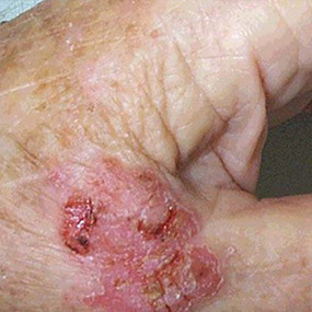 pictures of squamous cell carcinoma, Human Body