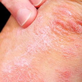 Top 7 Ways to Treat Psoriasis at Home Slide01-psoriasis-arm