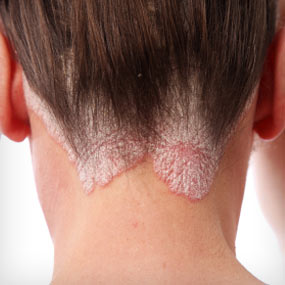 Large psoriasis scales on a person's scalp