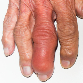 Causes of swollen ankles mayo clinic 401k