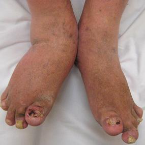 Problemas en las uñas por la Artritis Psoriasica