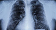 Pulmonary Arterial Hypertension (PAH): Understanding Treatment Options