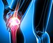 knee pain illustration