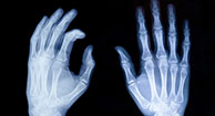 How Is a Rheumatoid Arthritis Diagnosis Made?