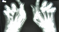 Pictures of Rheumatoid Arthritis