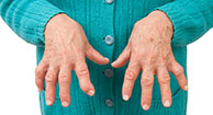 Phantom Menace: Does Seronegative Rheumatoid Arthritis Exist?