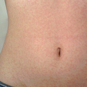 measles-rash-stomach