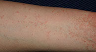 Scabies: The Seven-Year-Itch