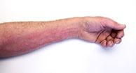 Severe Allergy: Symptoms & Treatments