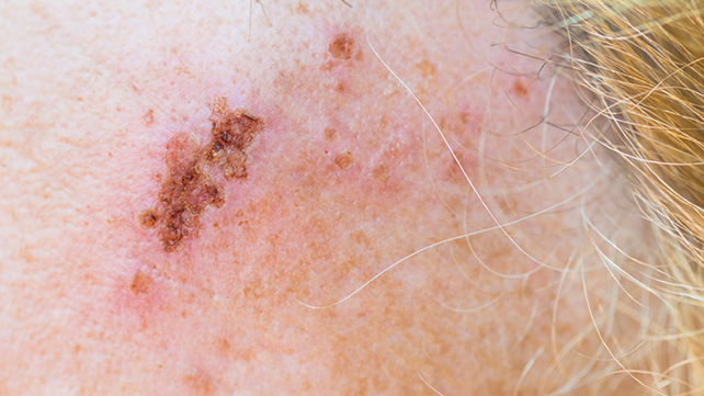 What Does Shingles Look Like? 11 Shingles Pictures of ...