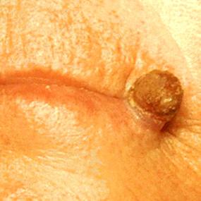 gambar kanker kulit actinic keratosis