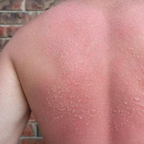 Image of back with a sunburn.