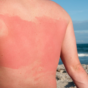 Image of back with sunburn.