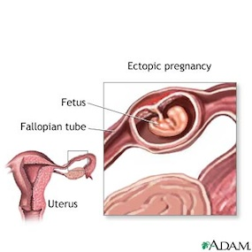 A diagram of an ectopic pregnancy.