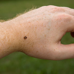 "ticks-on-hand"" width="