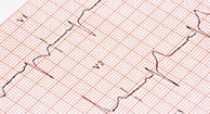 What Are My Treatment Options for AFib?