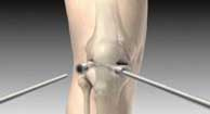 image of the inside of the knee