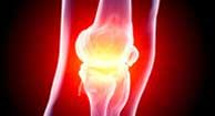 image of an inflamed knee